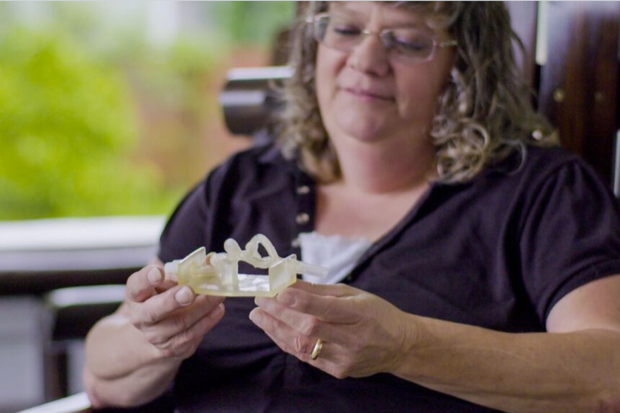 Teresa Flint, a 47-year-old mother of three, was among the first patients helped through the use of a 3D printed model of her vascular system and brain aneurism. Flint is holding a 3D printed model of her aneurism. Credit: Stratasys